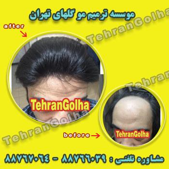 روشی نوین در ترمیم مو