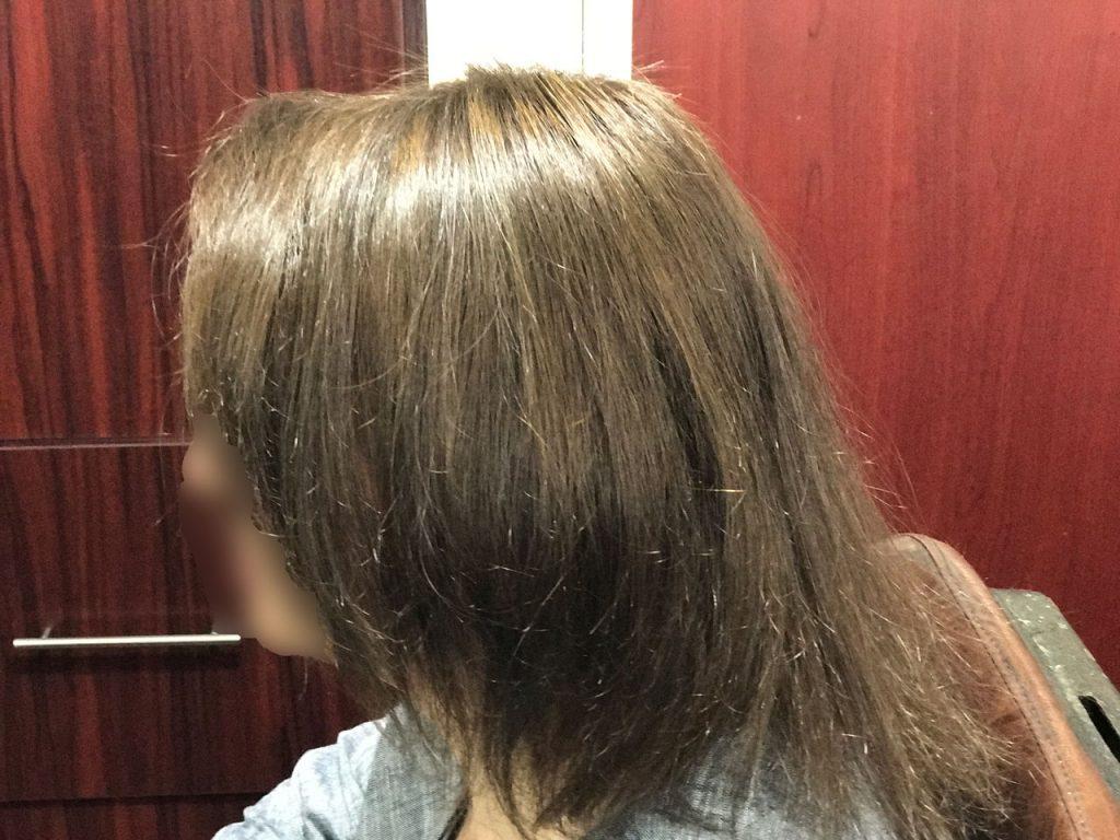 کلينيک تخصصي بهترين مو با جديد ترين روش ترميم مو