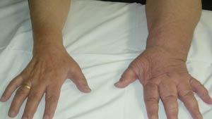 درمان ورم لنفاوی در تهران