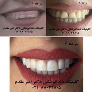 دندانپزشک ملاصدرا دکتر امیر مقدم  02188032805 لامینیت دندان،ایمپلنت دندان،اصلاح طرح لبخند،کاشت دندان